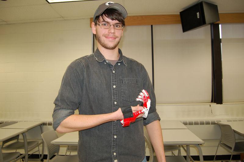 student holding prosthetic hand